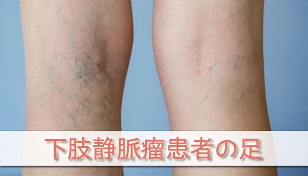 下肢静脈瘤患者の足の画像