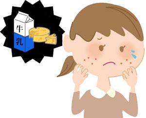 乳製品アレルギー